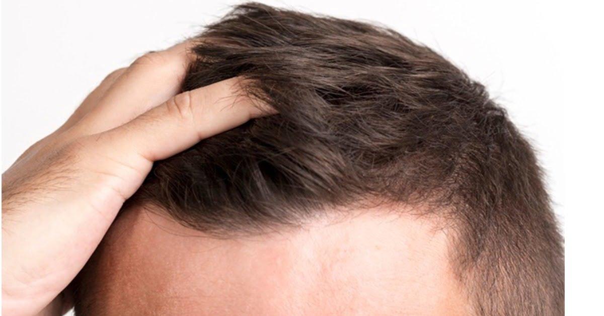 Ile kosztuje przeszczep włosów?